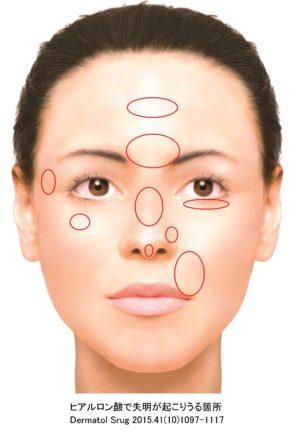 ヒアルロン酸で失明が起こりうる箇所