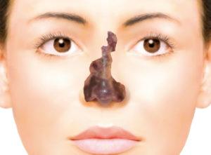 ヒアルロン酸注射後に起こった鼻の壊死