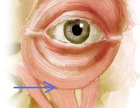concavity-under-the-eyes