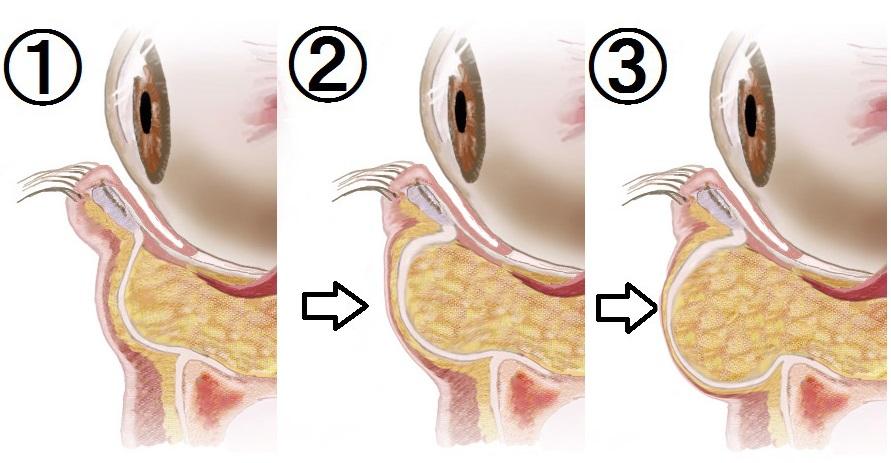 progression-of-baggy-eyelid