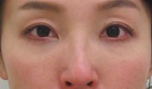 経結膜脱脂法41-目の下の治療ーグロースファクター後6M