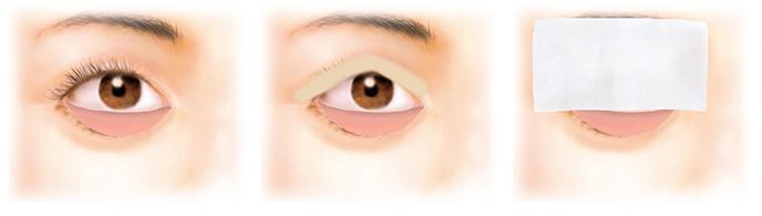 経結膜脱脂法13-手術の方法1