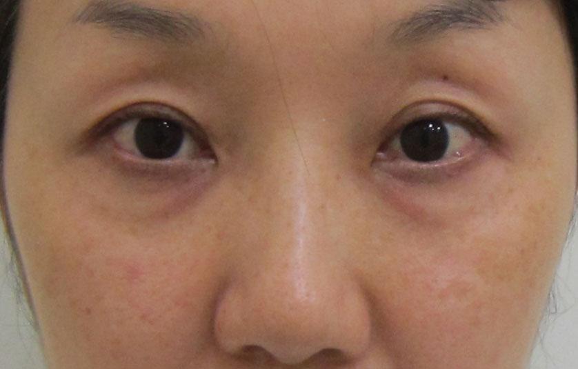 目の上のくぼみ、目の下のクマ治療前