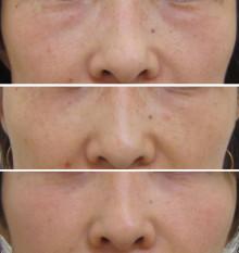 グロースファクターによる目の下の長期経過写真