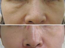 グロースファクターによる目の下、頬の治療:前後の比較写真