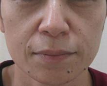 グロースファクター頬治療前