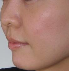 グロースファクター頬治療後