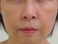 シミュレーション画像・・・目の下のクマ治療+頬・法令線のグロースファクター治療後の状態をコンピューター上で再現しています。
