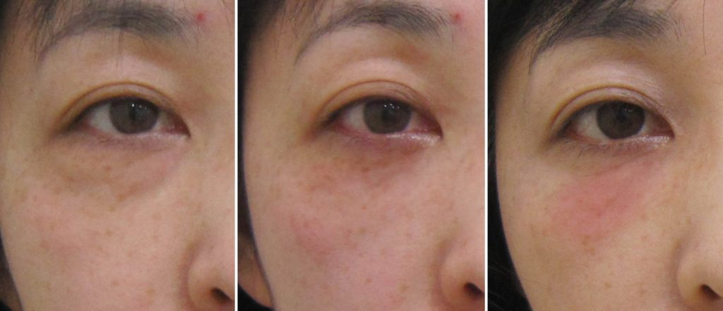 経結膜脱脂法58-メラフェード治療例ーpre post 3m