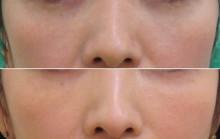 経結膜脱脂法59青クマ治療例-6-39-3