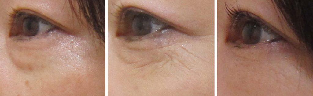 経結膜脱脂法29-目の下の治療ー術前3m 7m