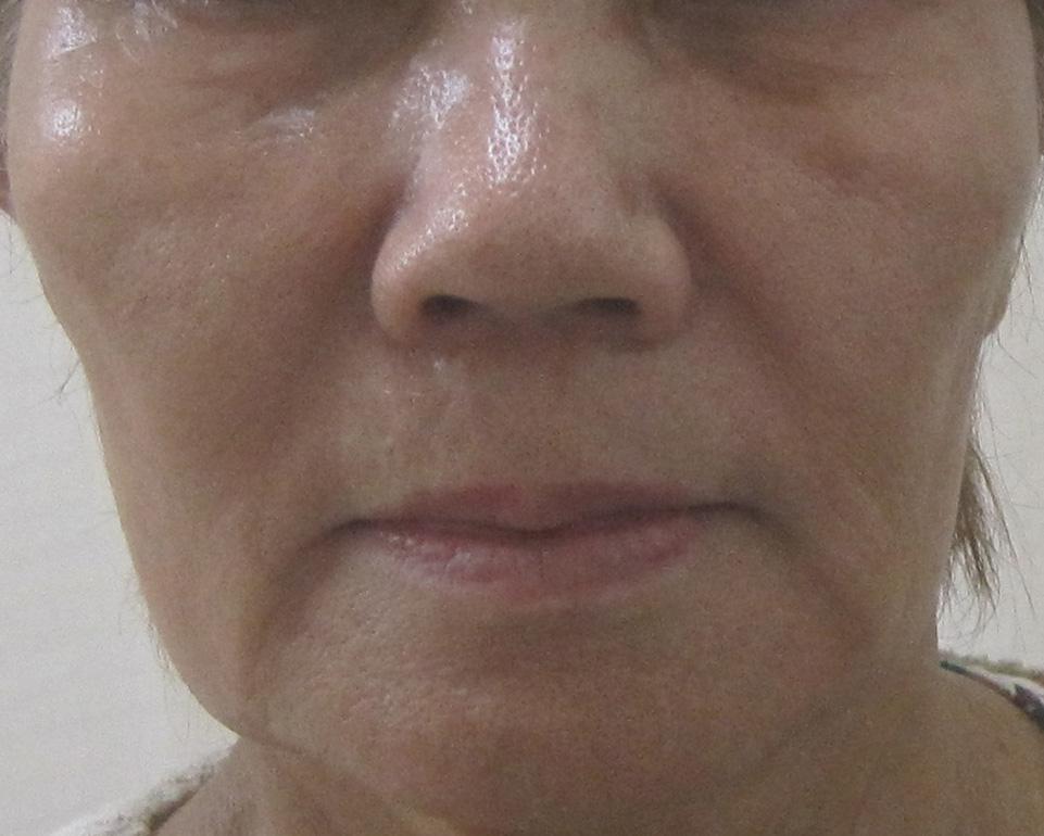 70代の方の顔全体のグロースファクター治療1年1ヵ月後