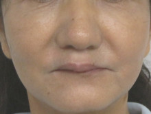 顔全体のたるみ治療後の写真