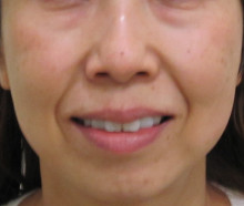 顔全体のたるみ治療前の笑った状態