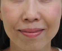 顔全体のたるみ治療後の笑った状態