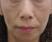 顔全体のたるみ治療前
