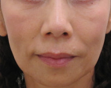 顔全体のたるみ治療後