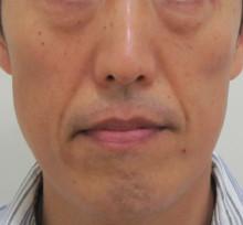 グロースファクターによる顔全体のたるみ治療前