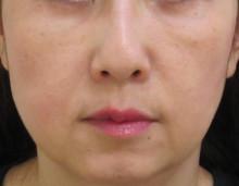 グロースファクターによる顔全体のたるみ治療後