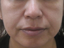グロースファクターによる顔全体の治療前の写真