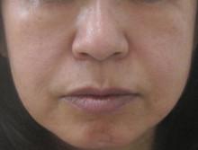 グロースファクターによる顔全体の治療後の写真