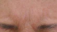 グロースファクターによる眉間のしわ治療後の写真