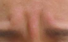 グロースファクターによる眉間のしわ治療前の写真
