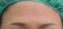 グロースファクターによる額のしわ治療前の写真