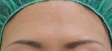 グロースファクターによる額のしわ治療後の写真