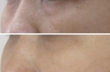 グロースファクターによる目の下のクマ治療前後比較