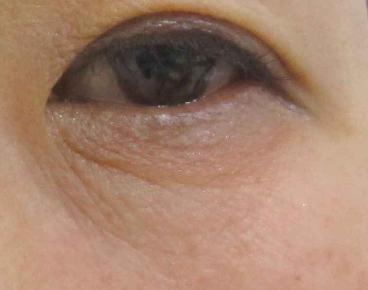 グロースファクターによる目の下の小ジワ治療前