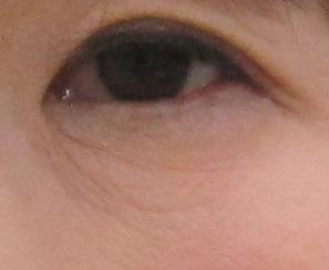 グロースファクターによる目の下の小ジワ治療後