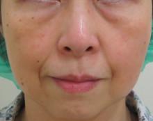 顔全体のたるみ治療前の写真