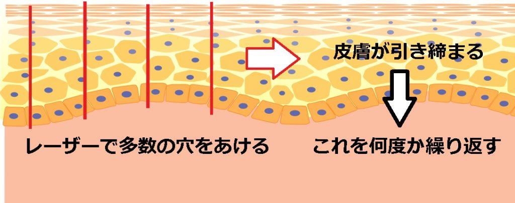 フラクショナルレーザーの治療原理の図