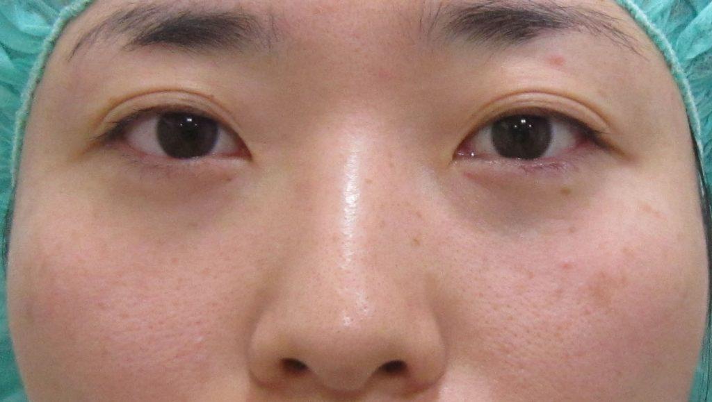 経結膜脱脂法63-2-脱脂のみの術前