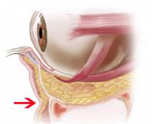 経結膜脱脂法47-くぼみを埋める場所