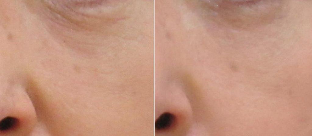 グロースファクターによる小ジワの治療例:施術前後写真2