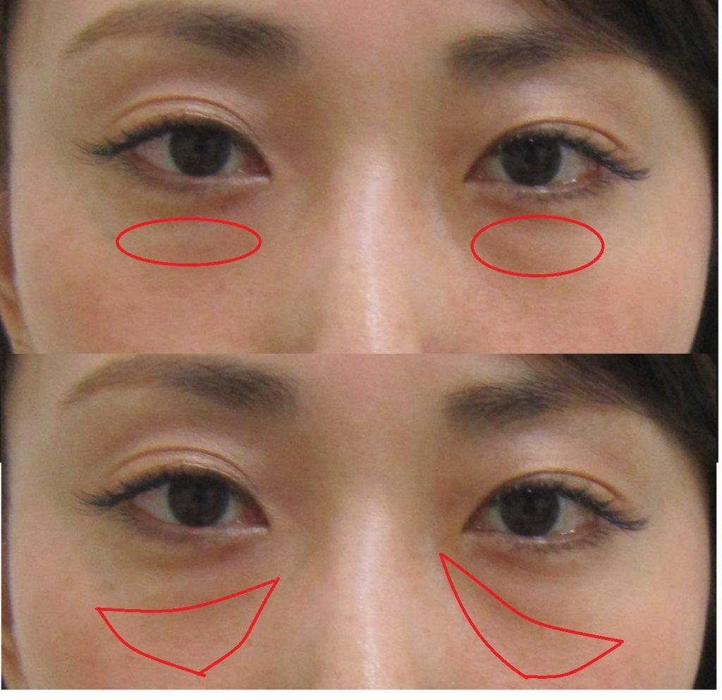 目の下のふくらみとくぼみの位置を示している図