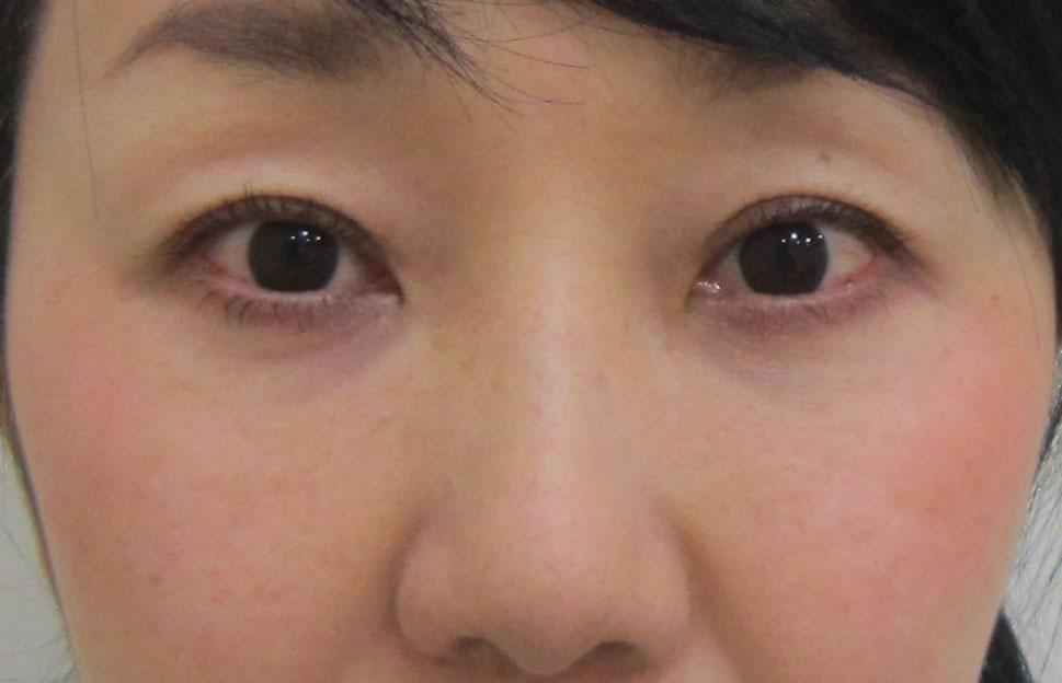 目の上のくぼみ、目の下のクマ治療後