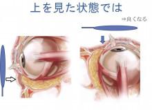 経結膜脱脂法82上を見ると脂肪の位置が変化する