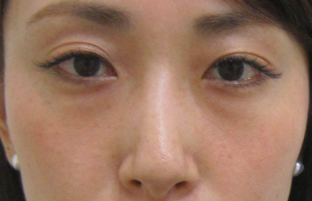 経結膜脱脂法70