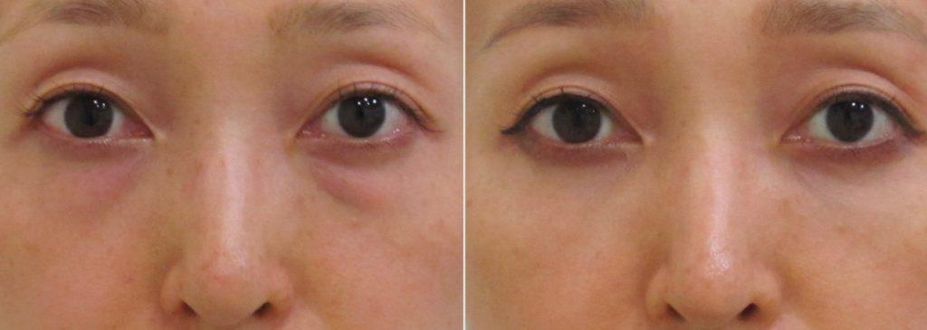 経結膜脱脂法11-黒クマ+赤クマの術前、術後1ヶ月