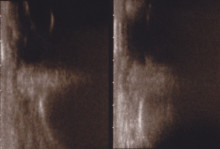 経結膜脱脂法33-目の下の超音波画像