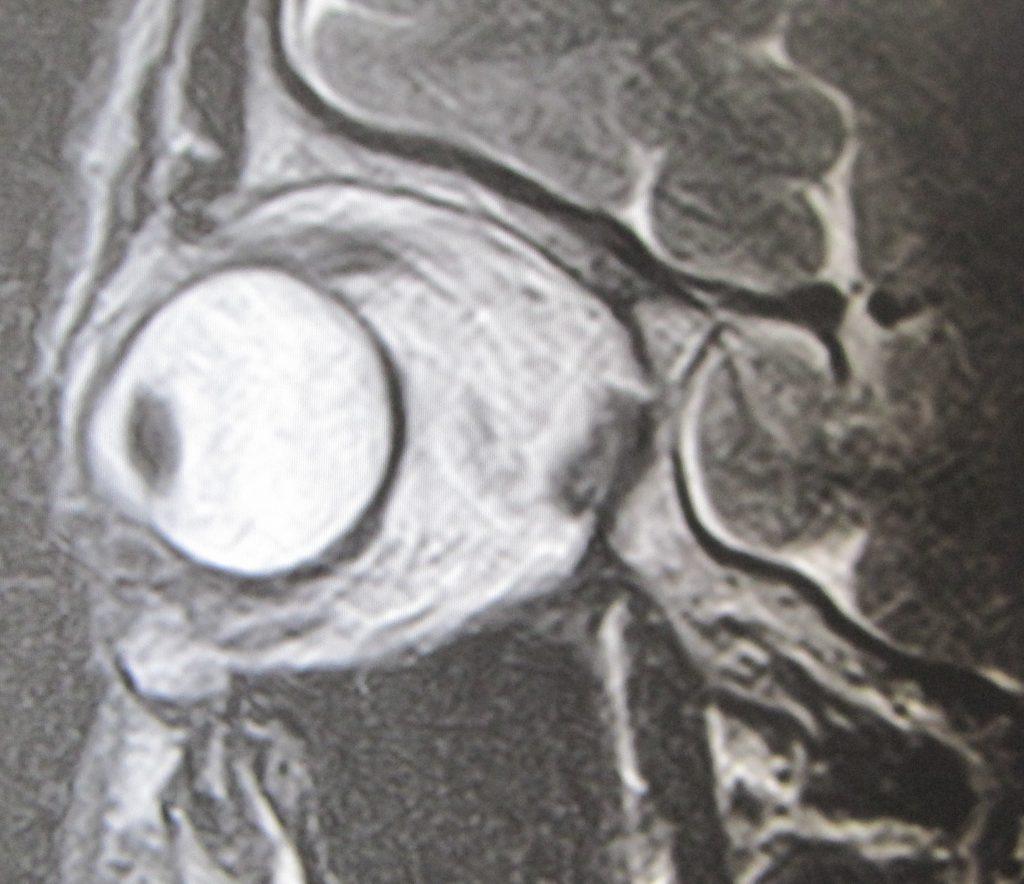 経結膜脱脂法61-目の下の脂肪の場所のMRI