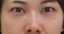 経結膜脱脂法84-6-43-8