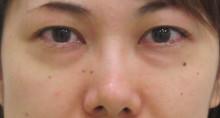 経結膜脱脂法83-6-43-7