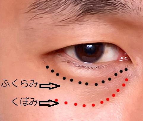 経結膜脱脂法35目の下ー術前#ふくらみ・くぼみ