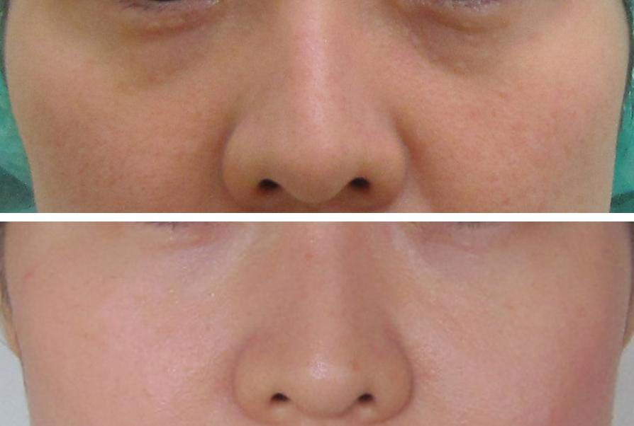 目の下のグロースファクター1年半後との比較-正面からの状態