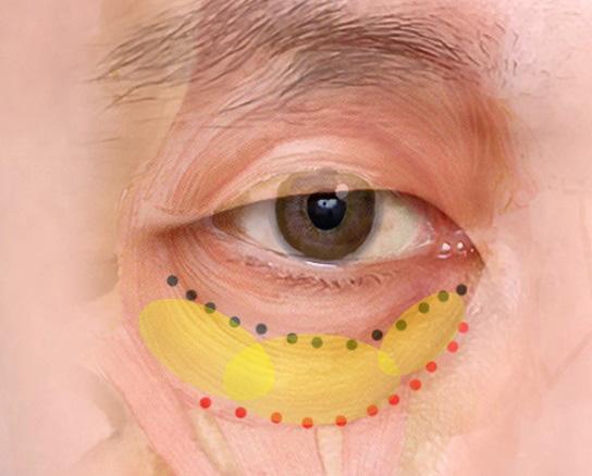 経結膜脱脂法62-目の下の脂肪が3つに分かれている図