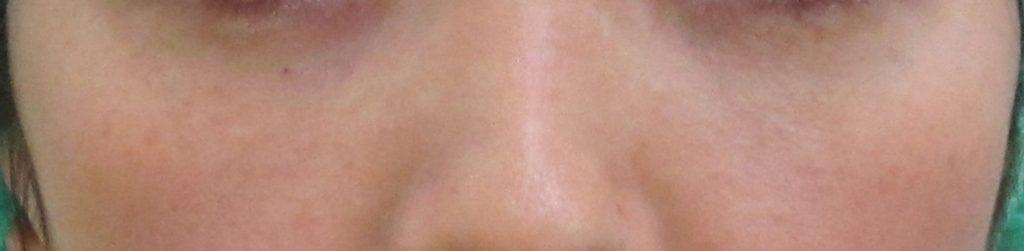 経結膜脱脂法2-青クマの例